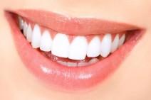 blanchiment-dent-paris